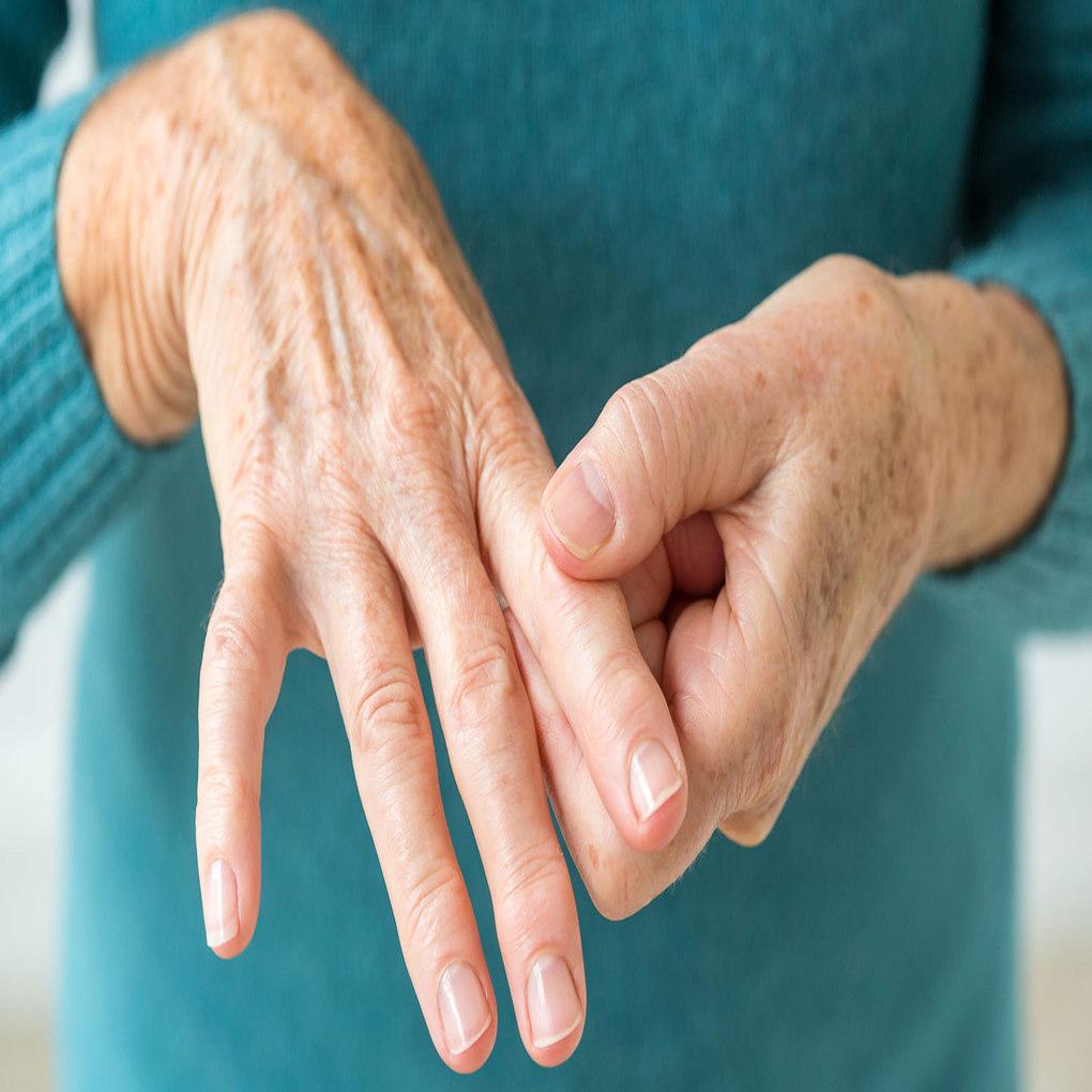 La artritis reumatoide no solo afecta las articulaciones