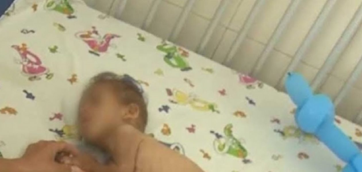La desnutrición, la falta de vacunas y la crisis de la atención pediátrica en los hospitales aumenta mortalidad infantil venezolana