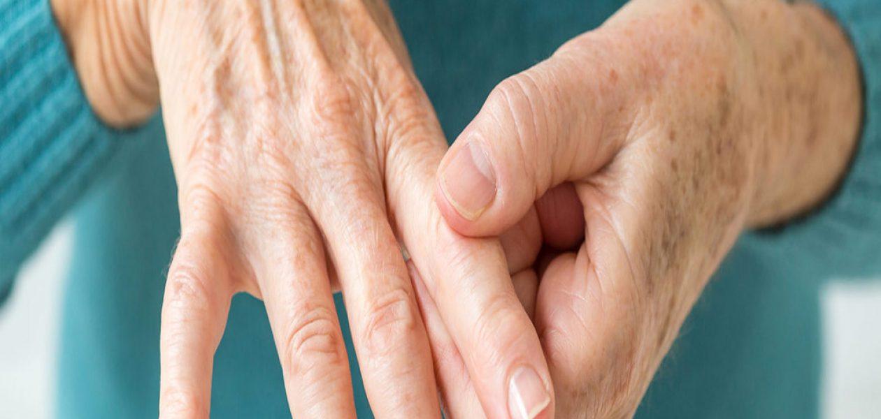 Artritis reumatoide: una enfermedad más común de lo que se cree