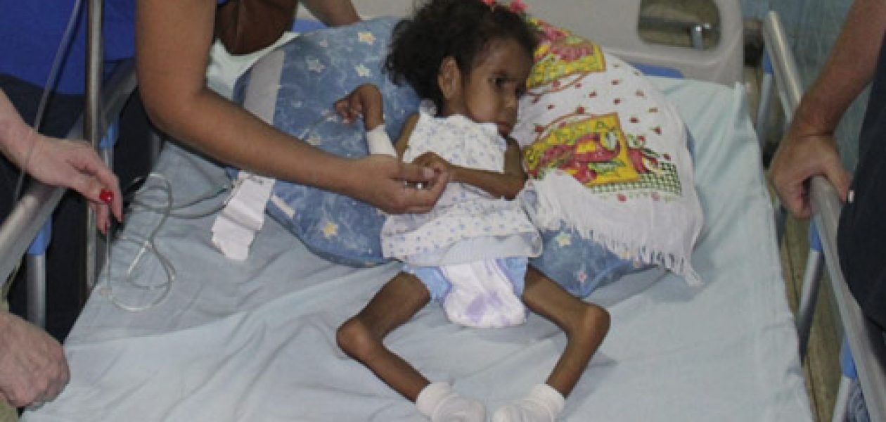 ¡Alerta! Desnutrición en Venezuela incrementa casos de tuberculosis