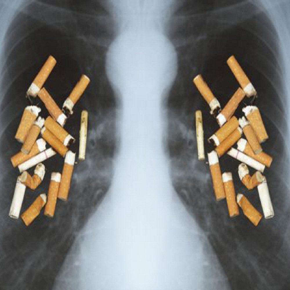 Día Mundial sin Tabaco: 1,69 millones de personas mueren por cáncer pulmonar