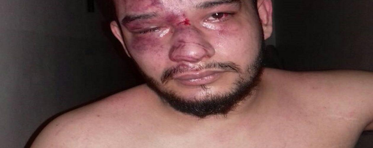 Preso político Gregory Sanabria fue desfigurado del rostro en El Helicoide