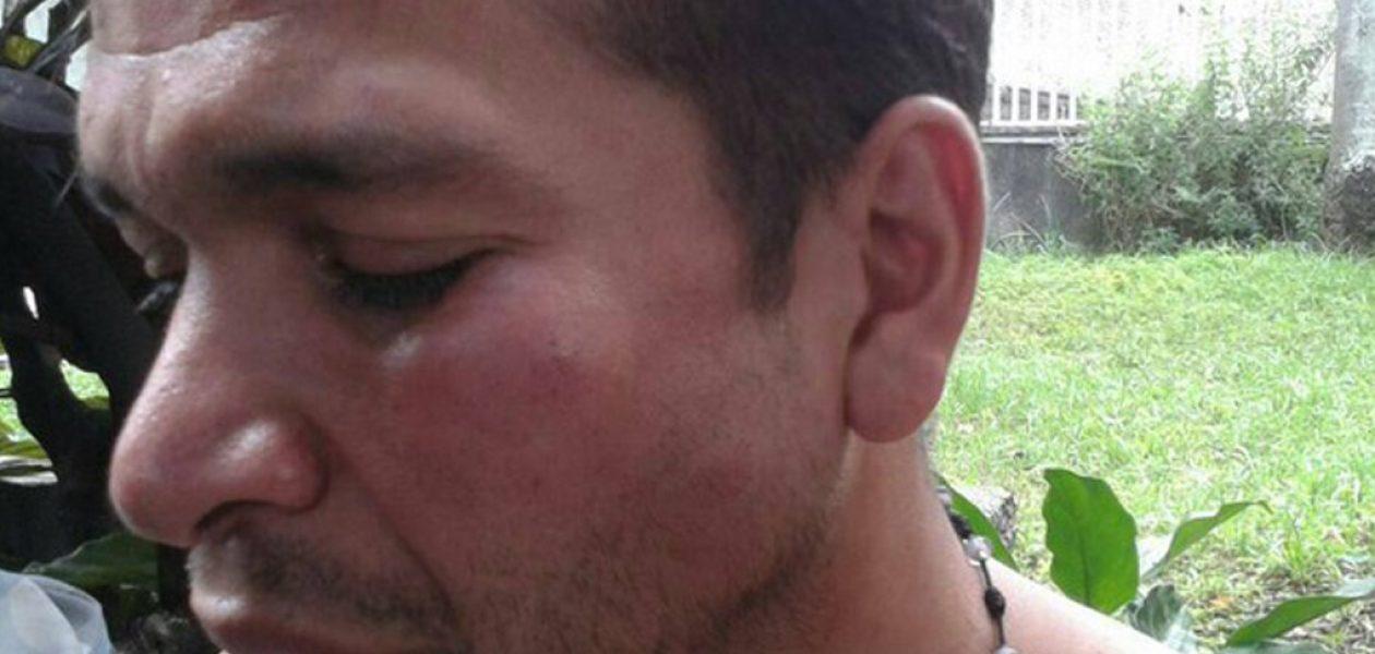 Guardia Nacional detuvo y agredió a periodista de la MUD