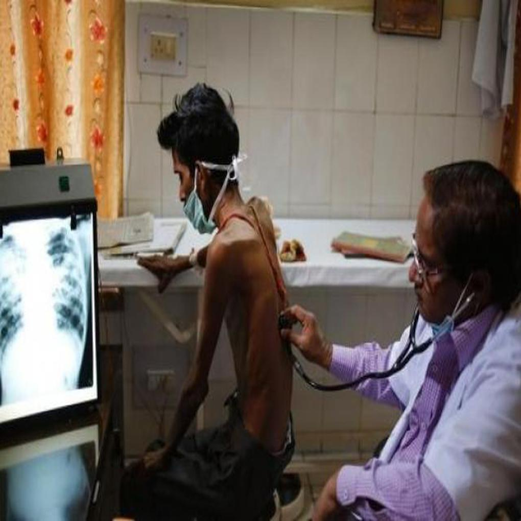 Tuberculosis en Venezuela aumenta por pecarías condiciones sanitarias